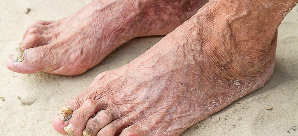 (web) Ageing feet