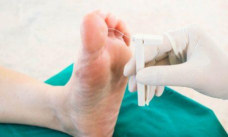 Tips to keep Diabetic feet healthy