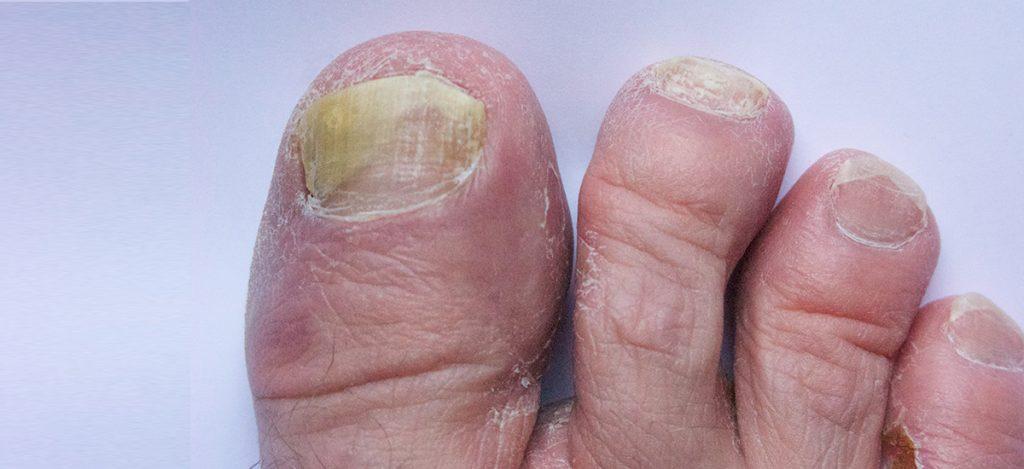 (web) Fungal Nails copy