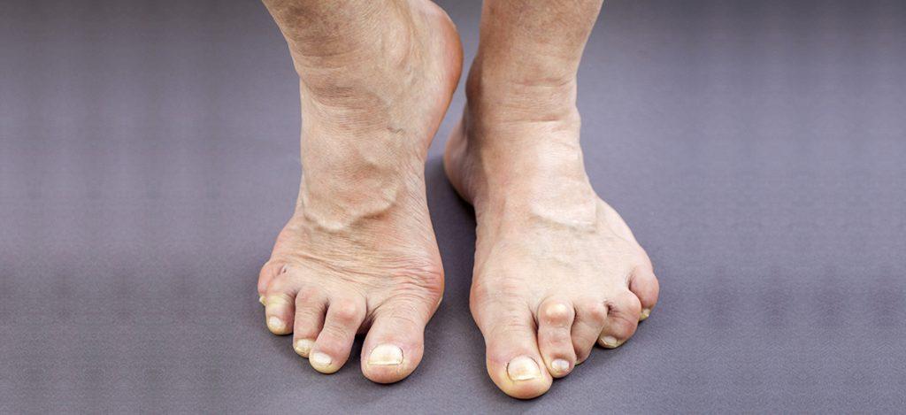 (web) Rheumatoid Arthritis