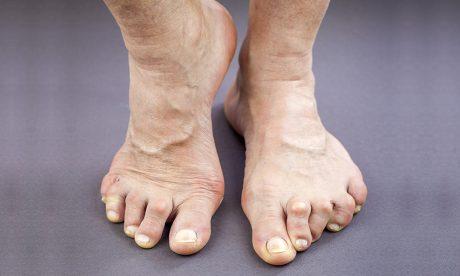 How does Rheumatoid Arthritis affect my feet?