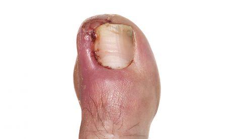 What is an ingrowing toenail?