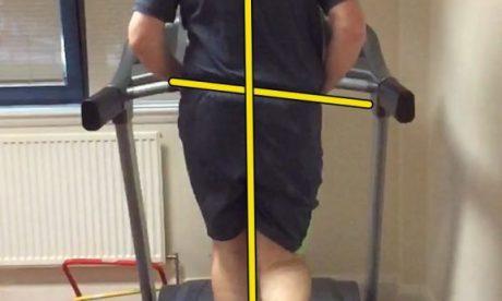 Shin pain in a runner